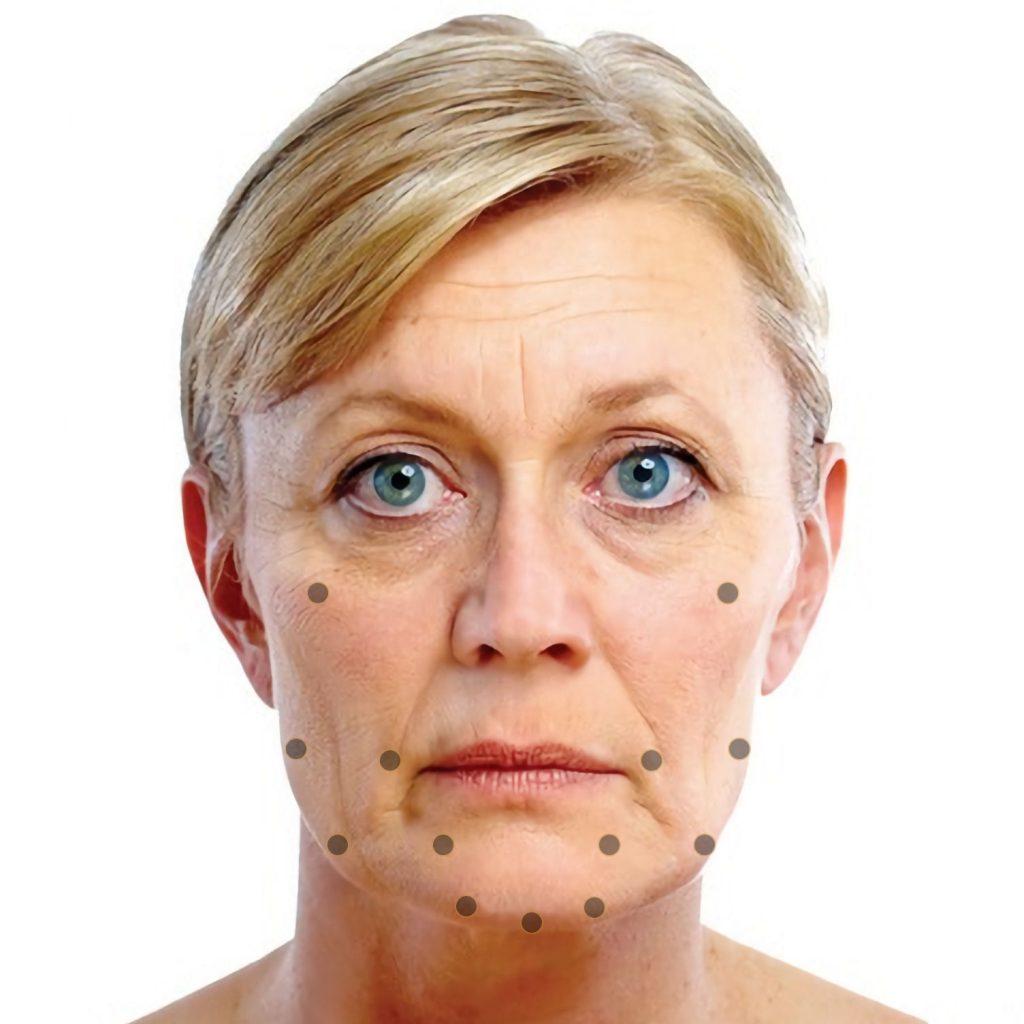 Treatment Areas, Skin-Bio-Armouring