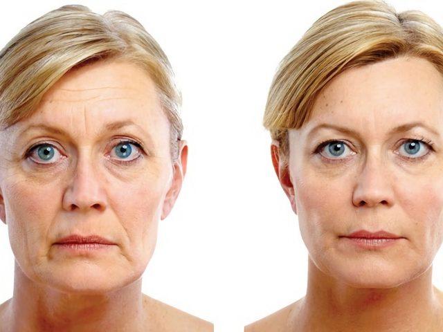Skin bio armouring, Skin Treatments, Anti Aging Treatments